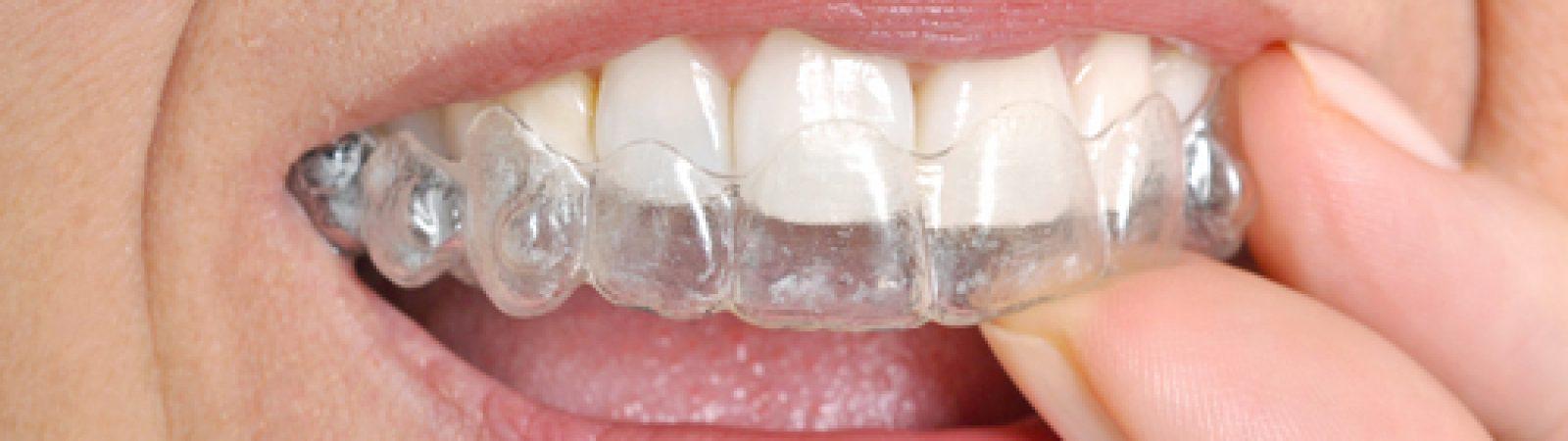 comprehensive orthodontic options